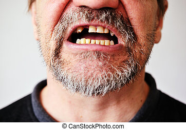 mans face with an open toothless mouth - part of a mans face...