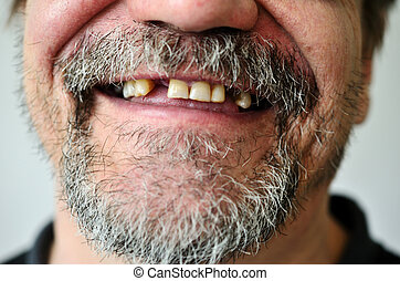 mans face with a smiling toothless - part of a mans face...