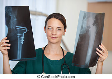 Female Doctor Holding Xray Reports In Hospital