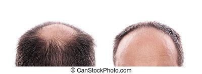hair loss - circular hair loss at the back of the head and...