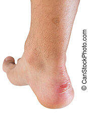 Ankle of male man with scratch - Closeup of ankle of male...