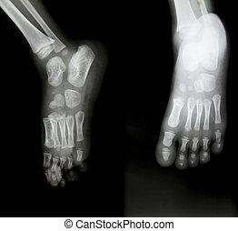 ambos, radiografía, humano, Pies