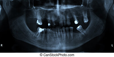 Mouth and dental x-ray detail (scanned from radiograph);