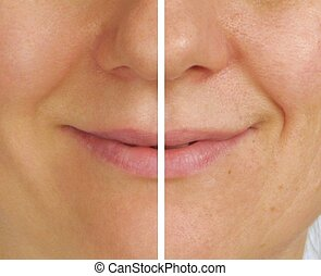 Correction of wrinkles - half face - Correction of wrinkles...