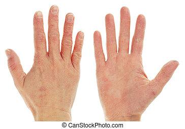 eczema, dermatite, frente, costas, mão
