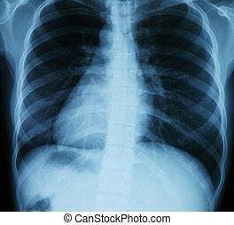 radiografía, pecho, exploración