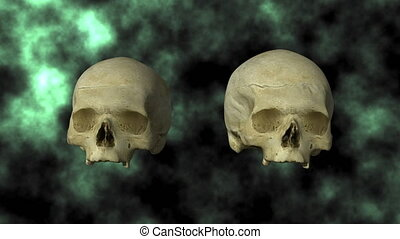 Hydrocephalic Skull, Top 25P - 3D scan of actual human...