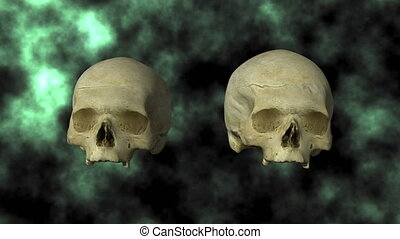 Hydrocephalic Skull, Top 30P - 3D scan of actual human...
