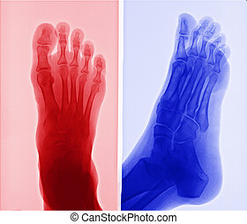 pie, imagen, radiografía