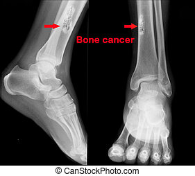 X ray of Bone cancer