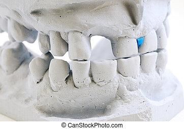 detalhado, macro, dentes, moldagem
