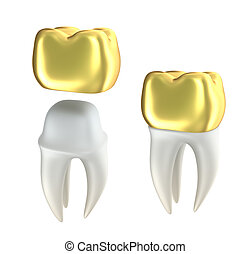 Golden Dental crowns and tooth - Golden Dental crowns and...