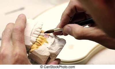 Dental implants laboratory. Dental implants (brushing)