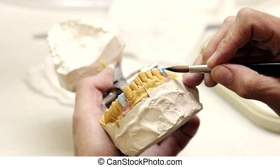 Dental implants laboratory Dental implants brushing