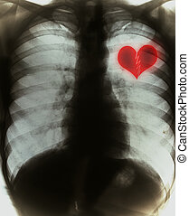 Broken heart on black x-ray film
