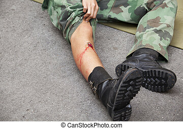 gunshot wound  - Gunshot wound on soldier's leg