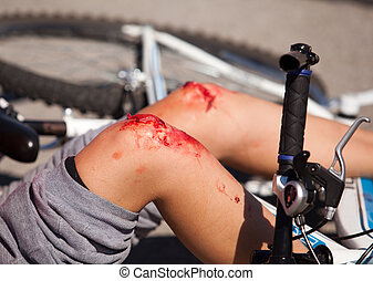 bike injuries - Injury's on boy's legs