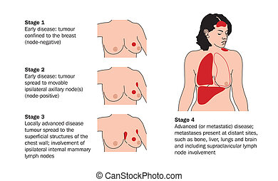XStages of breast cancer - Drawing to show the various...
