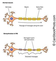 Demyelinisation - Demyelination in multiple sclerosis -...