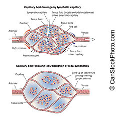 Capillary bed lymphoedema - Capillary bed showing...