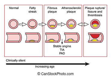 Atherosclerotic - Development of atherosclerotic