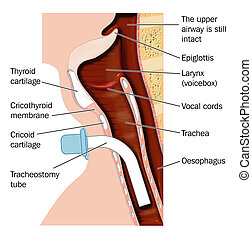 Tracheostomy tube placement -- labeled