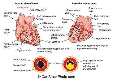 Coronary heart disease labeled