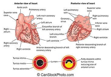 Coronary heart disease labeled