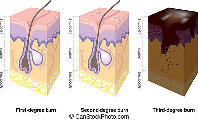 Skin burns labeled - Illustration of first-, second-, and...