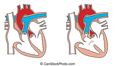 Congenital heart defect - Normal heart and congenital birth...