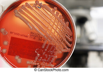Microbiology - Growth of bacteria Klebsiella on blood agar...