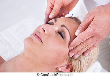 An Acupuncture Therapy In A Spa Center - Detail Of A Woman...