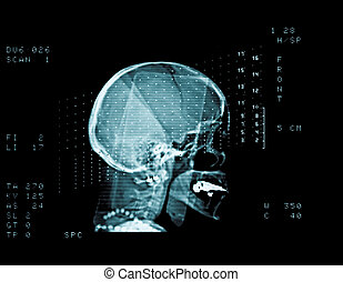 skull cat scan - cat scan of a middle aged woman head
