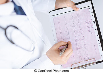 male doctor hands with cardiogram - bright picture of male...