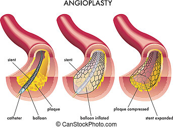 Angioplasty - medical illustration of an angioplasty...