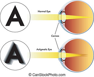 astigmatism - medical illustration of the symptoms of...