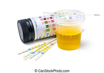 Urine test strips - Medical exam. The urine test strips