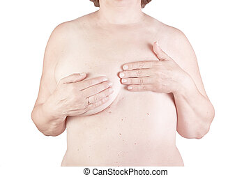 Breast cancer, breast removed on a white background