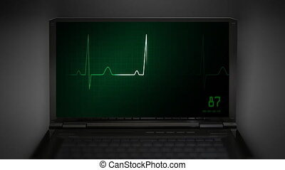 heart on an EKG monitor green - EKG at notebook computer