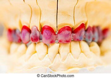 Wax Denture - Wax model of the metal basis ceremic dental...