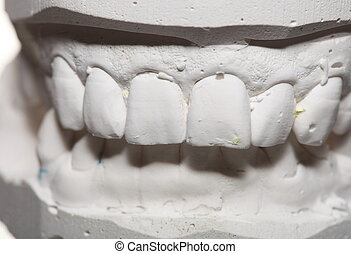 Dental gypsum model mould of teeth in plaster - Dental...