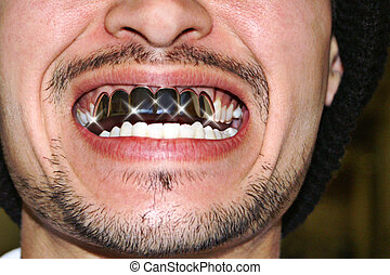 Teeth With Grillz - Teeth with metal crowns called grillz...