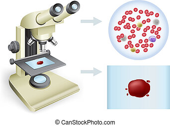blood under a microscope - Analysis of blood under a...