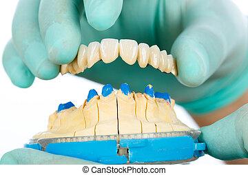 Porcelain teeth - dental bridge - Dentist showing beautiful...