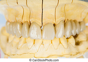 Ceramic teeth - dental bridge - Beautiful porcelain teeth on...