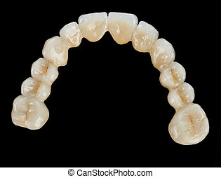 Porcelain teeth - dental bridge - Beautiful dental bridge...
