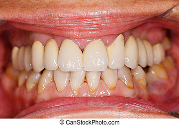 Porcelain teeth in human mouth - A beautiful porcelain...