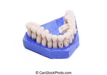 Prosthetic teeth on white background - Prosthetic teeth...