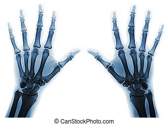 X-ray hands - X-rays of hands of an adult man with visible...