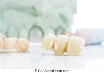 Macro of prosthetic teeth on a white background